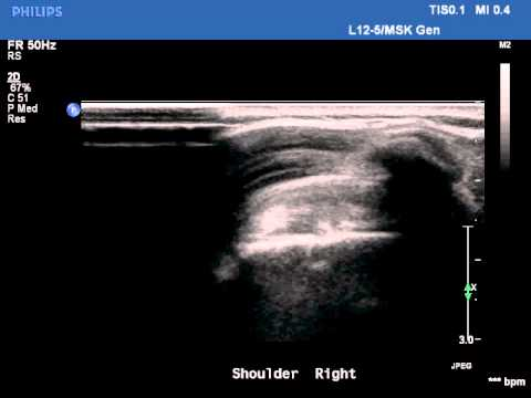 Dynamic Ultrasound: Supraspinatus onder acromion