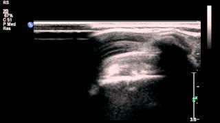 Dynamic Ultrasound: Supraspinatus onder acromion