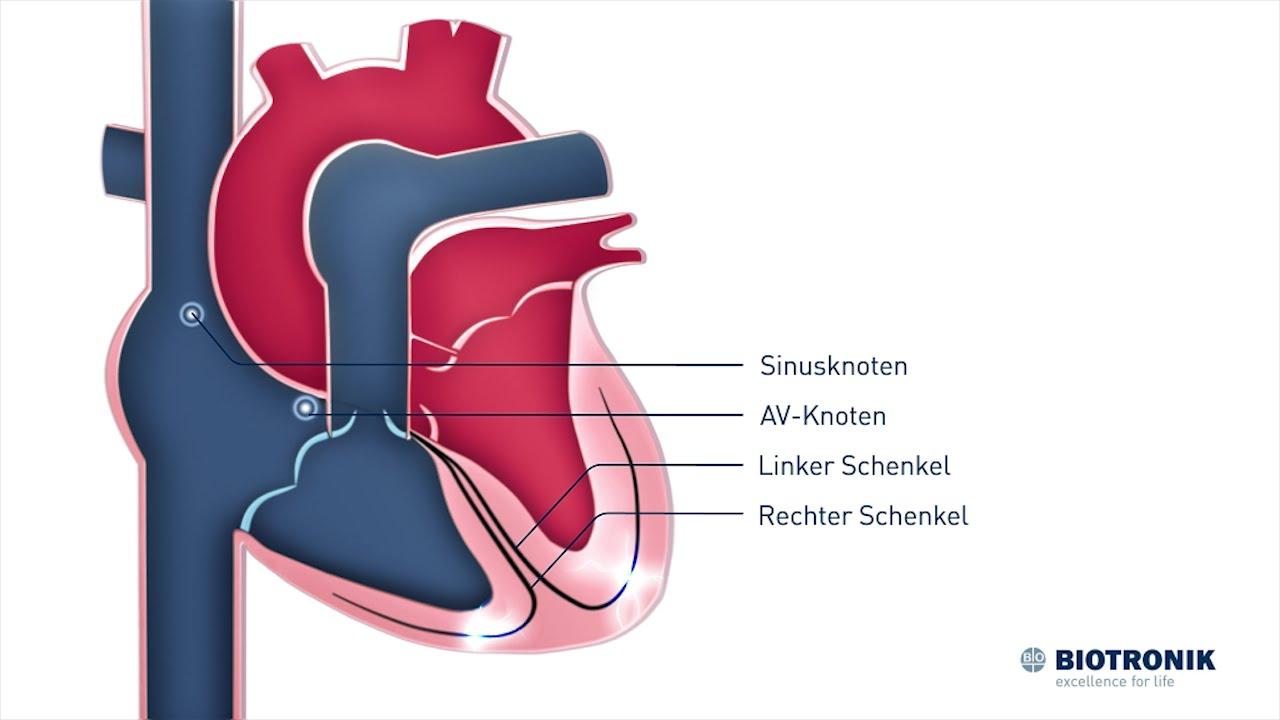 Elektrische Reizleitung des Herzens (Film 2 BIOTRONIK) - Animation ...
