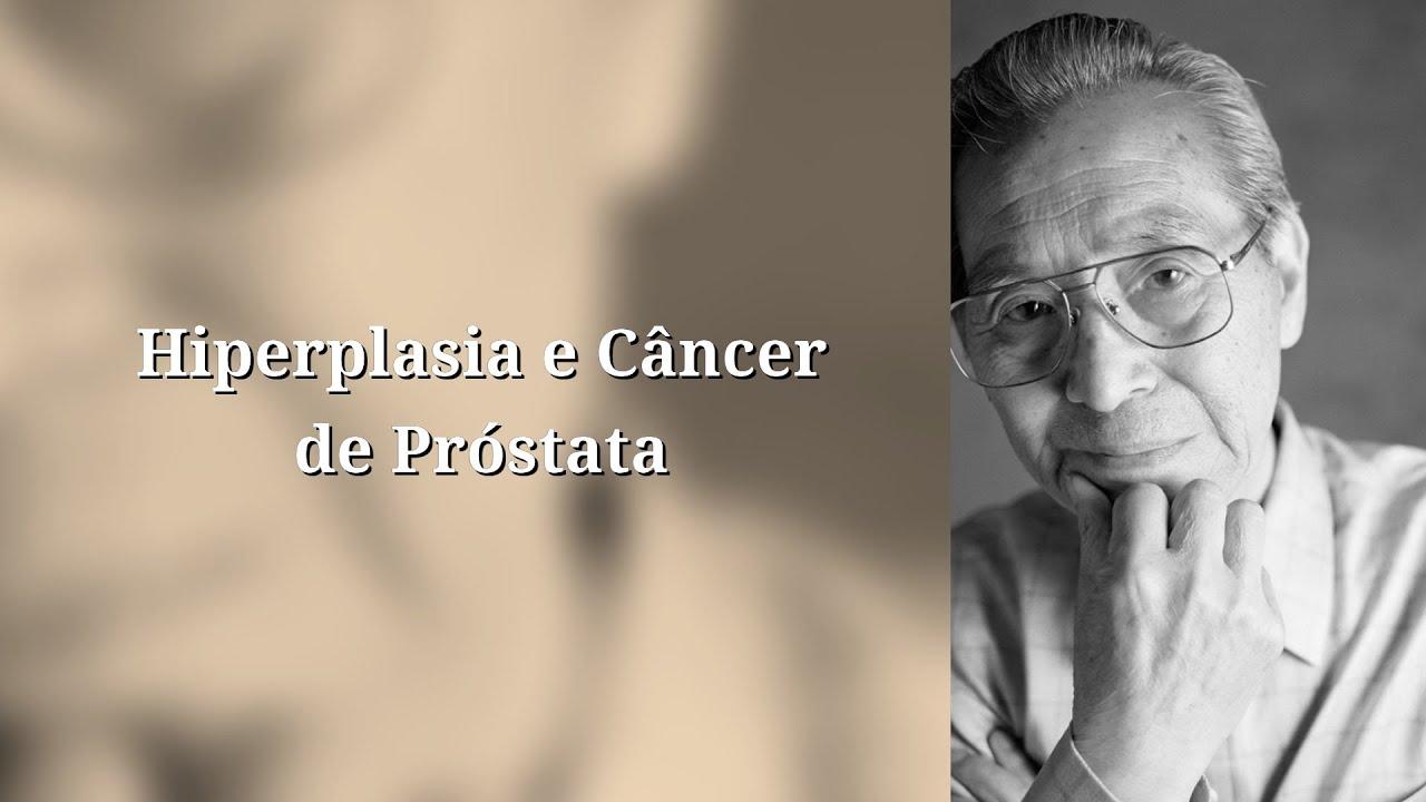 Clínica Uro Onco - Guia essencial para saúde da próstata