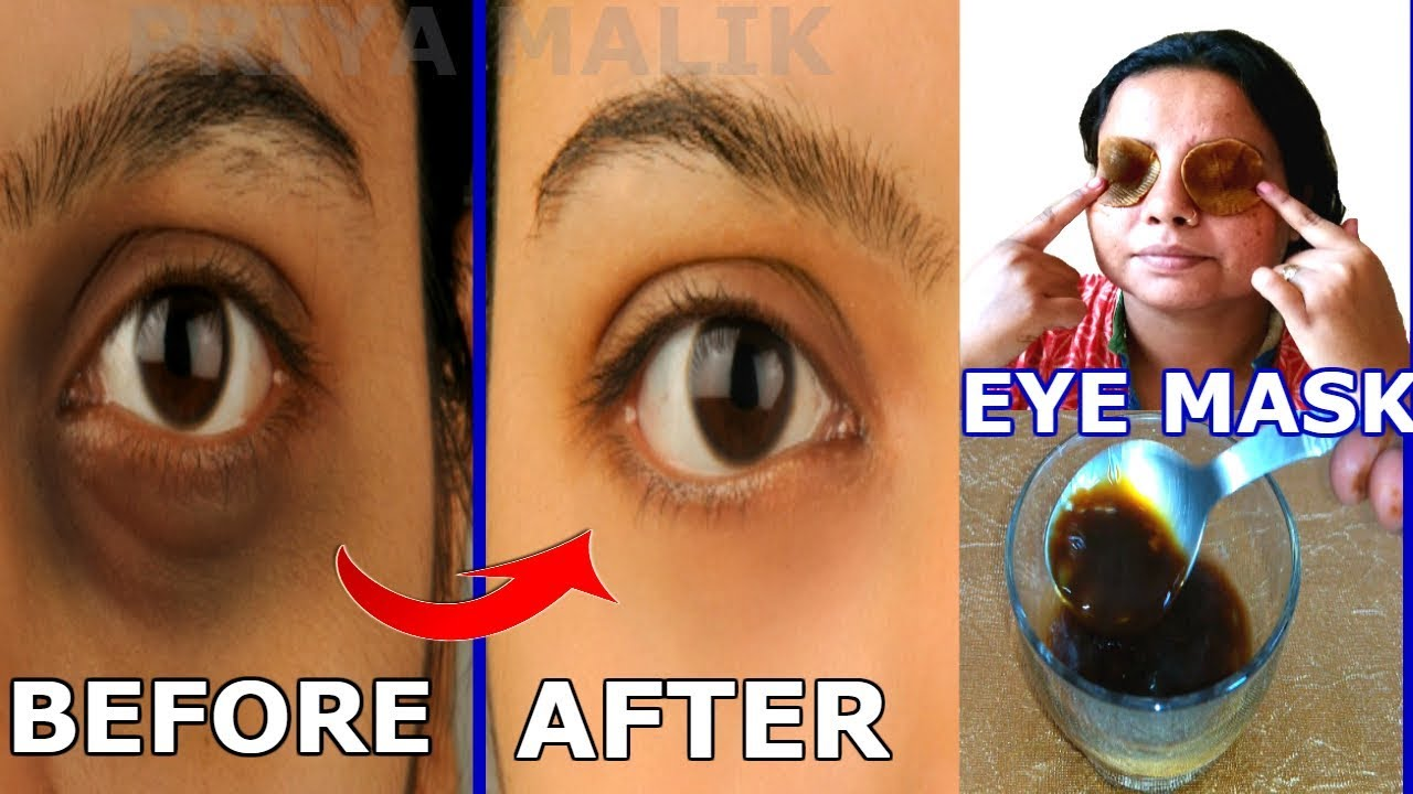Remove Dark Circles Puffy Eyes In Just 3 Days Diy Eye Mask 100 Effective Natural Priya Malik