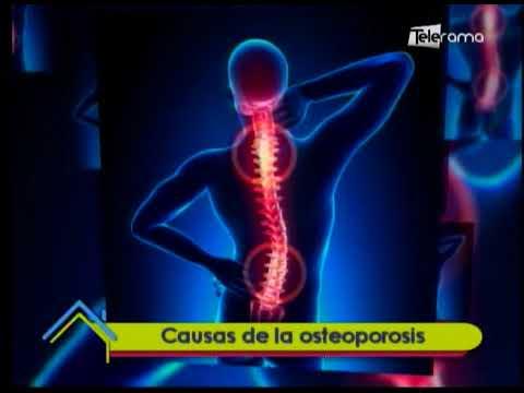 Causas de la osteoporosis