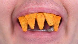 Teeth Made of Doritos!
