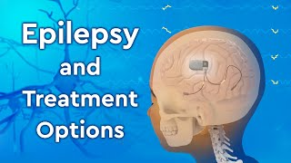 What is Epilepsy and How is it Treated?