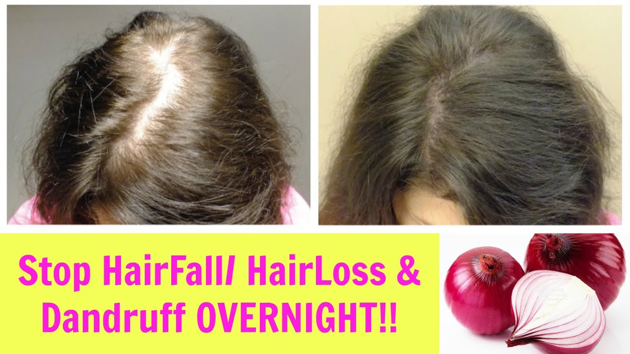 How To Stop And Prevent Hair Breakage And Maintain The