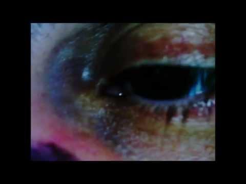 Shocking Toxic Mold (Stachybotrys, Aspergillus Niger) victim eye closeup