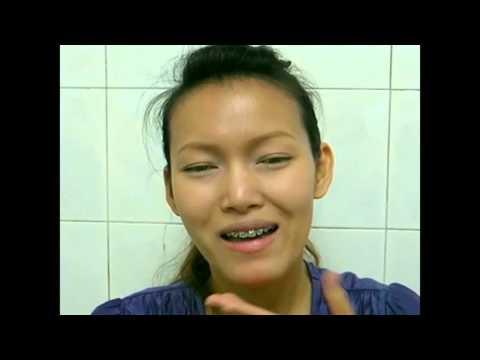จัดฟัน จัดโครงสร้างใบหน้า สหคลินิกหมอฟันและหมอ เคสคางยื่นไม่ผ่าตัด