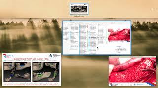 Вэбинар 3  Индивидуальные костные блоки RBB 2