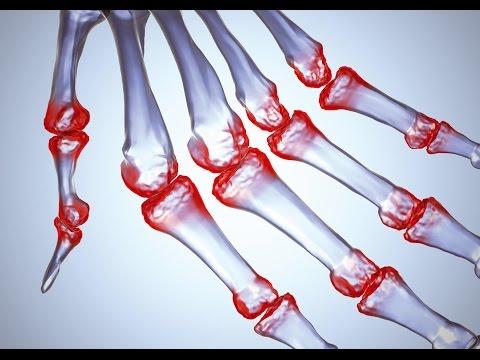 Артроз голеностопного сустава: симптомы, лечение и фото