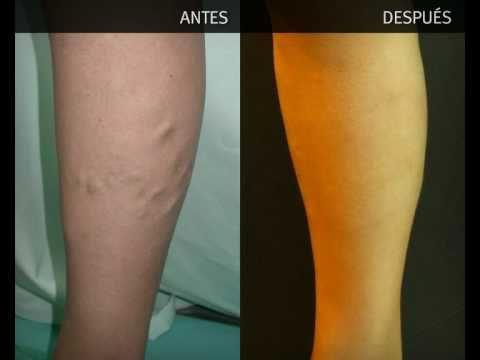 cirugía de venas varicosas antes y después