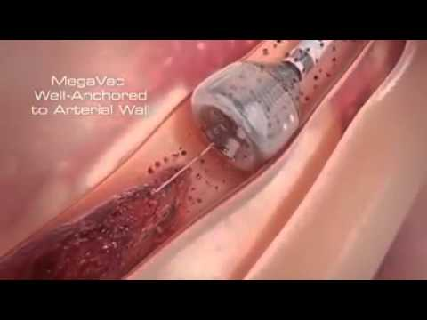 Newest Technology | Heart Stent video (Angioplasty) New Medical Line Video | Heart Attack reasons