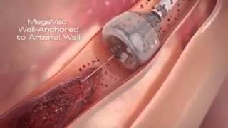 Newest Technology | Heart Stent video (Angioplasty) New Medical Line Video | Heart Attack reasons thumbnail