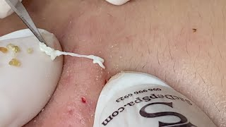 Teenage Acne (Pimples) | Mụn Ở Tuổi Dậy Thì - SacDepSpa#222