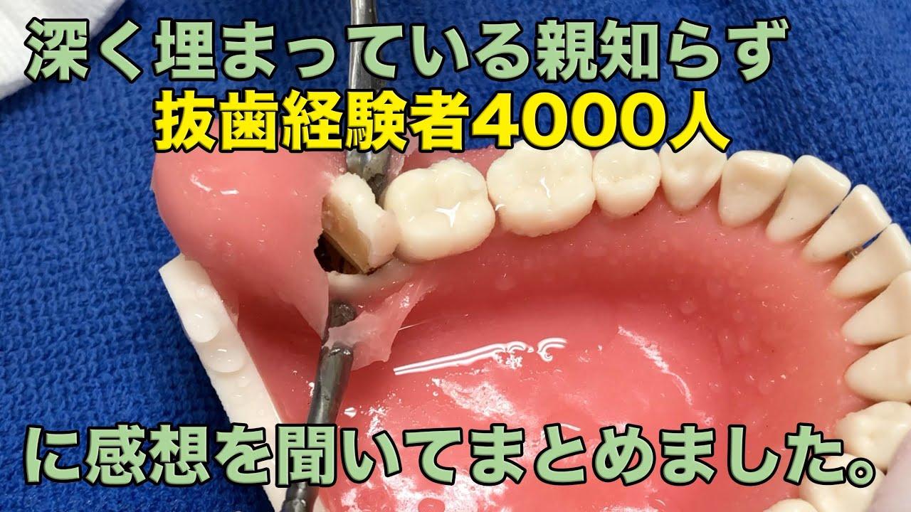 の 後 親知らず 歯 他 が 痛い 抜歯