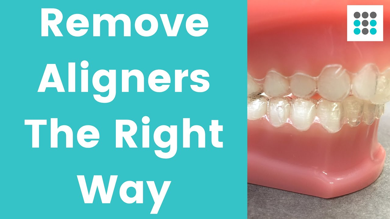 Invisalign Trays Cracking: Patient Experiences, and What to