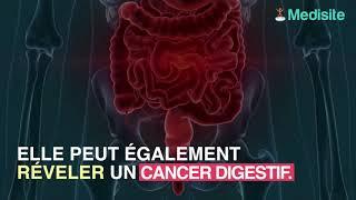 Une grosseur sur le nombril s'est révélée être un cancer des ovaires.