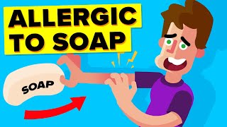 I Am Allergic To Soap (Story)