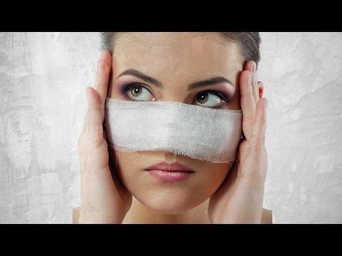 ДО И ПОСЛЕ ПЛАСТИКИ 1: 10 знаменитостей, изменивших форму носа #ДоИПослеПластики 1