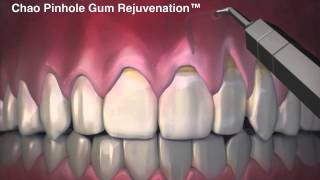 Chao Pinhole Gum Rejuvenation - Chao Pinhole Surgical Technique