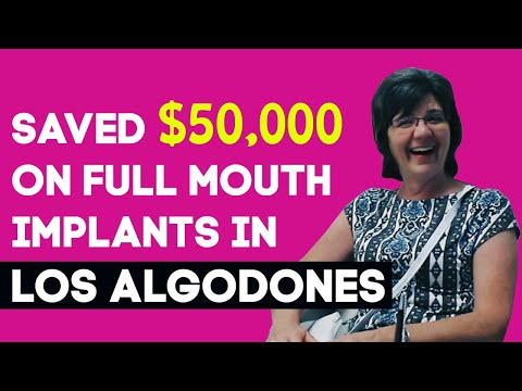 Full Mouth Implants in Los Algodones – Mexico – Client's Review