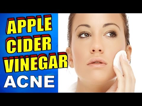 how-to-use-apple-cider-vinegar-for-acne,-face-toner-&-eczema-treatment