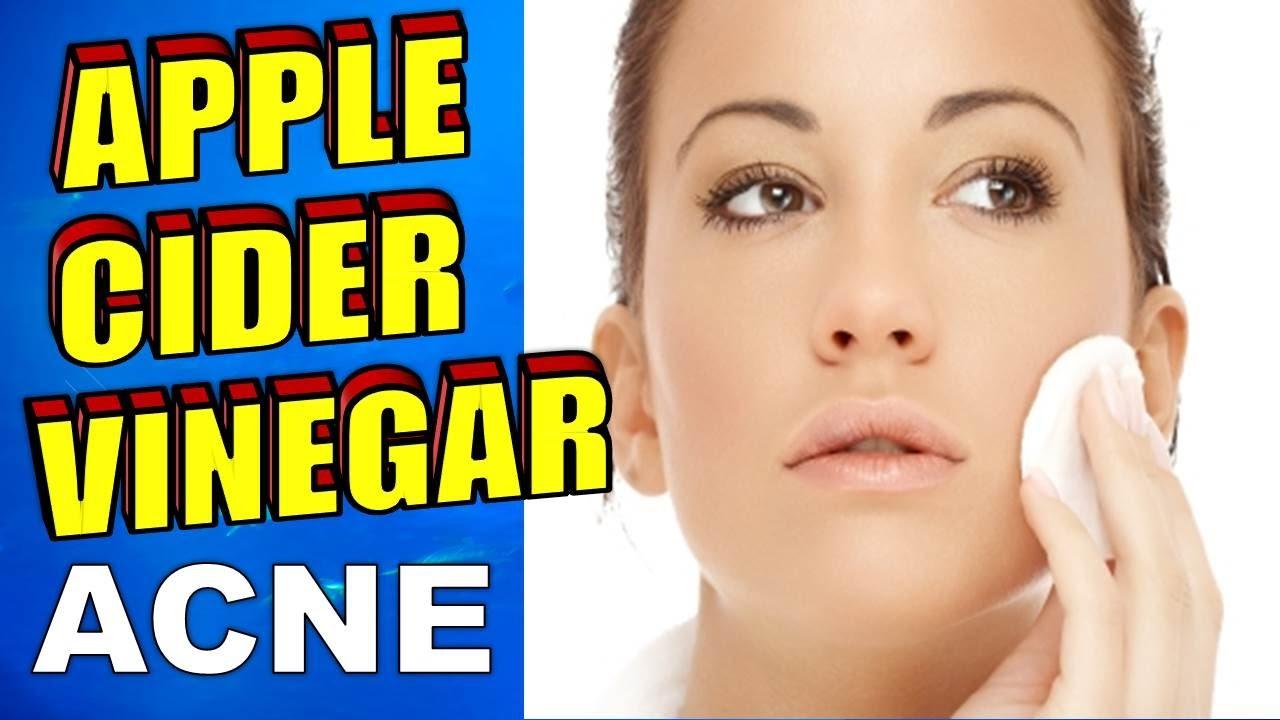 how to use apple cider vinegar for acne, face toner & eczema