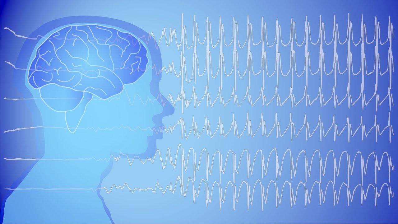 Epilepsi nöbeti geçiren kişiye nasıl davranılmalı