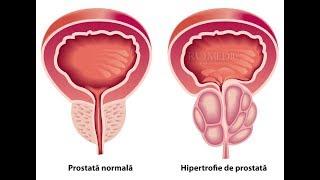 Pastila sanatate despre prostata | novatv.ro