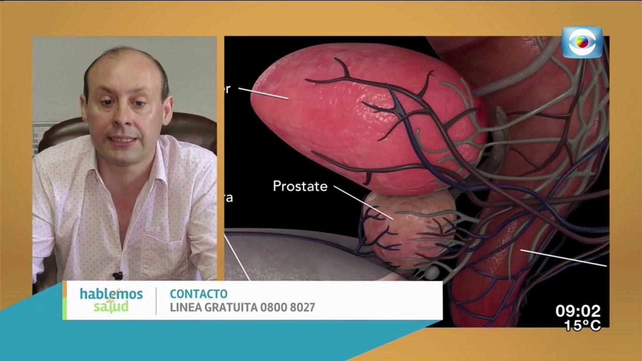 relación entre extirpación de próstata y parkinsonia