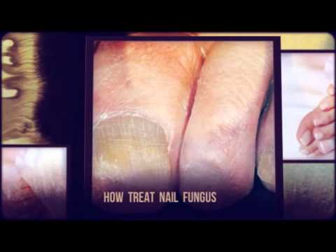 Nail fungi. How to remove toenail fungus