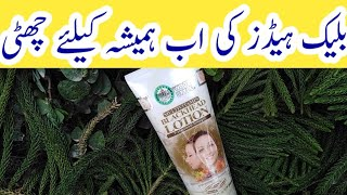 Hollywood style blackhead lotion review |how to get rid of blackheads fast |
