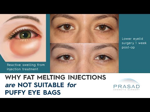 why-fat-dissolving-injections-are-not-advised-for-treating-under-eye-bags