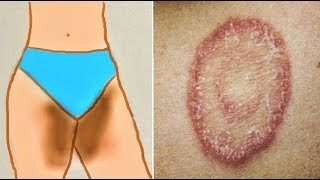 How to treat Private Part Itching, Fungal infection, burning, Yeast infection - Home Remedies