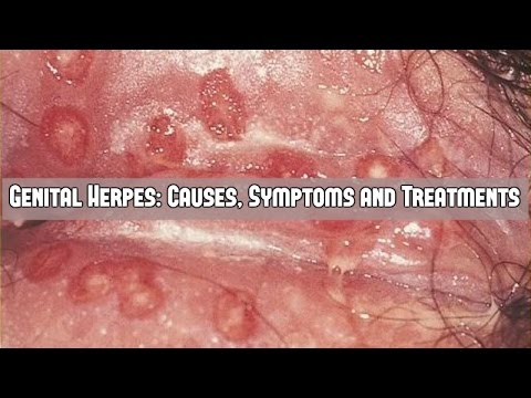 Dating girl with genital herpes