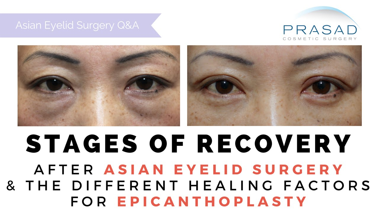 Asian Double Eyelid Surgery and Epicanthoplasty - Stages of Recovery and  Temporary Asymmetry
