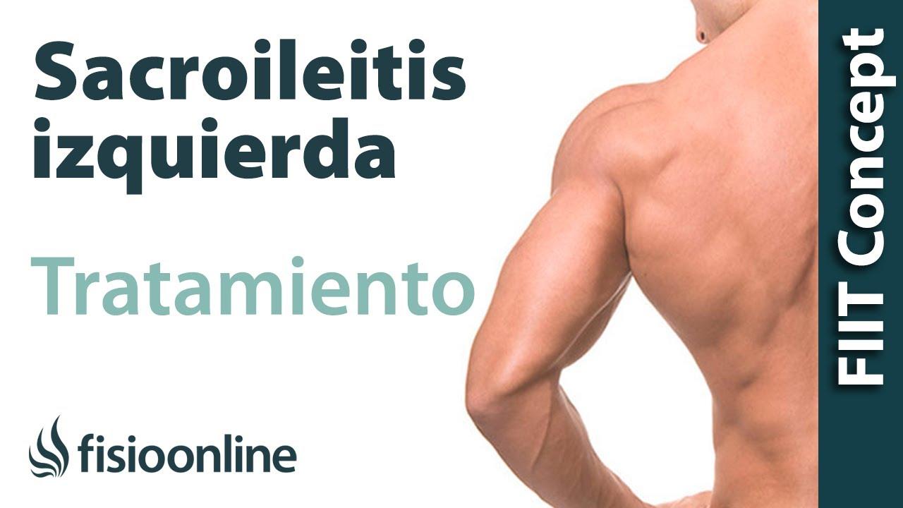 Tratamiento de la sacroileitis o dolor sacroilíaco izquierdo