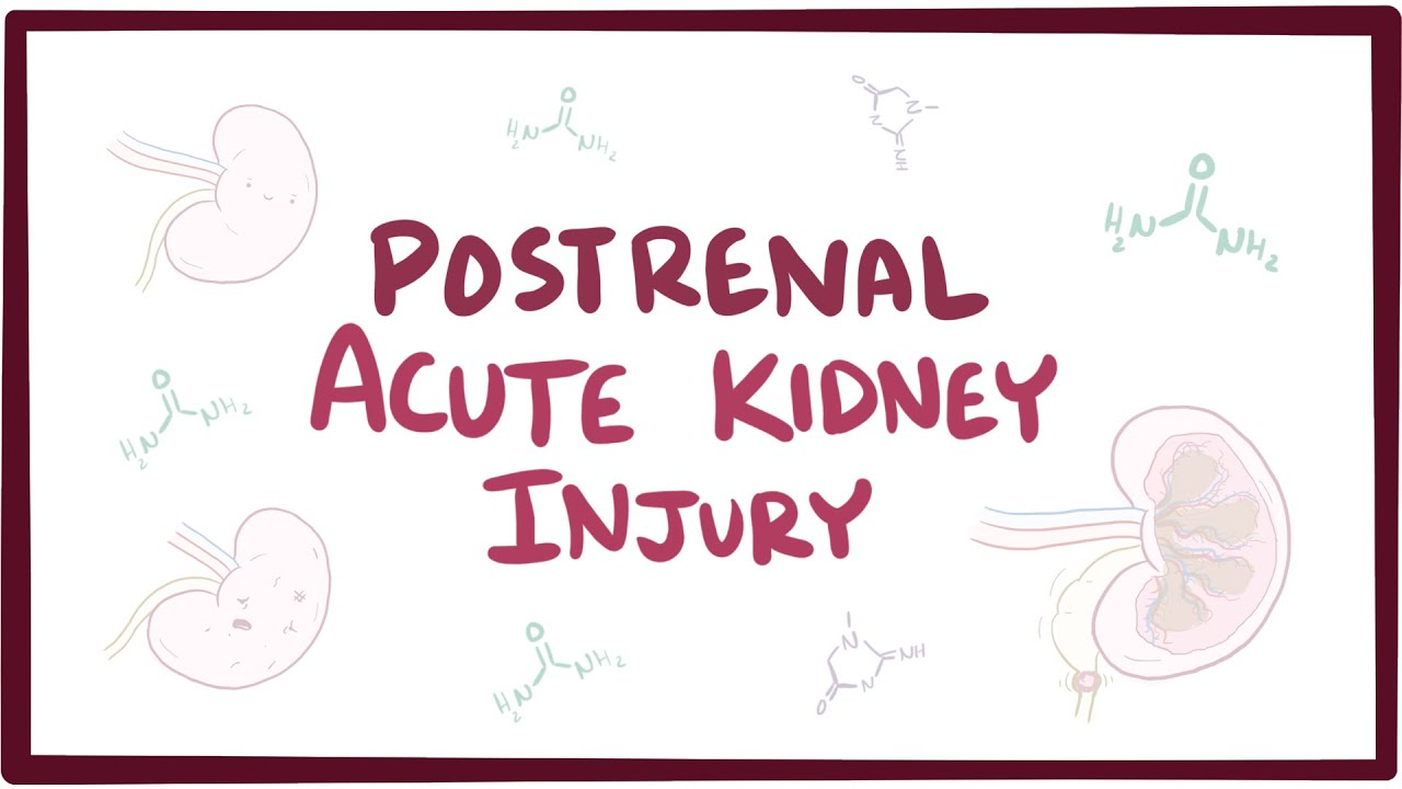 What is Acute Kidney Failure?