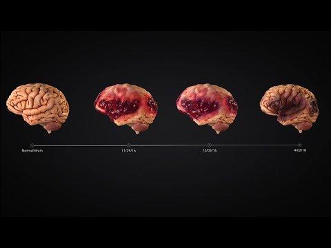 Traumatic Brain Injury Timeline Animation Charts Encephalomalacia