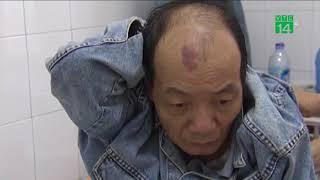 VTC14 | 1,6 vạn người chết vì thờ ơ với bệnh lao