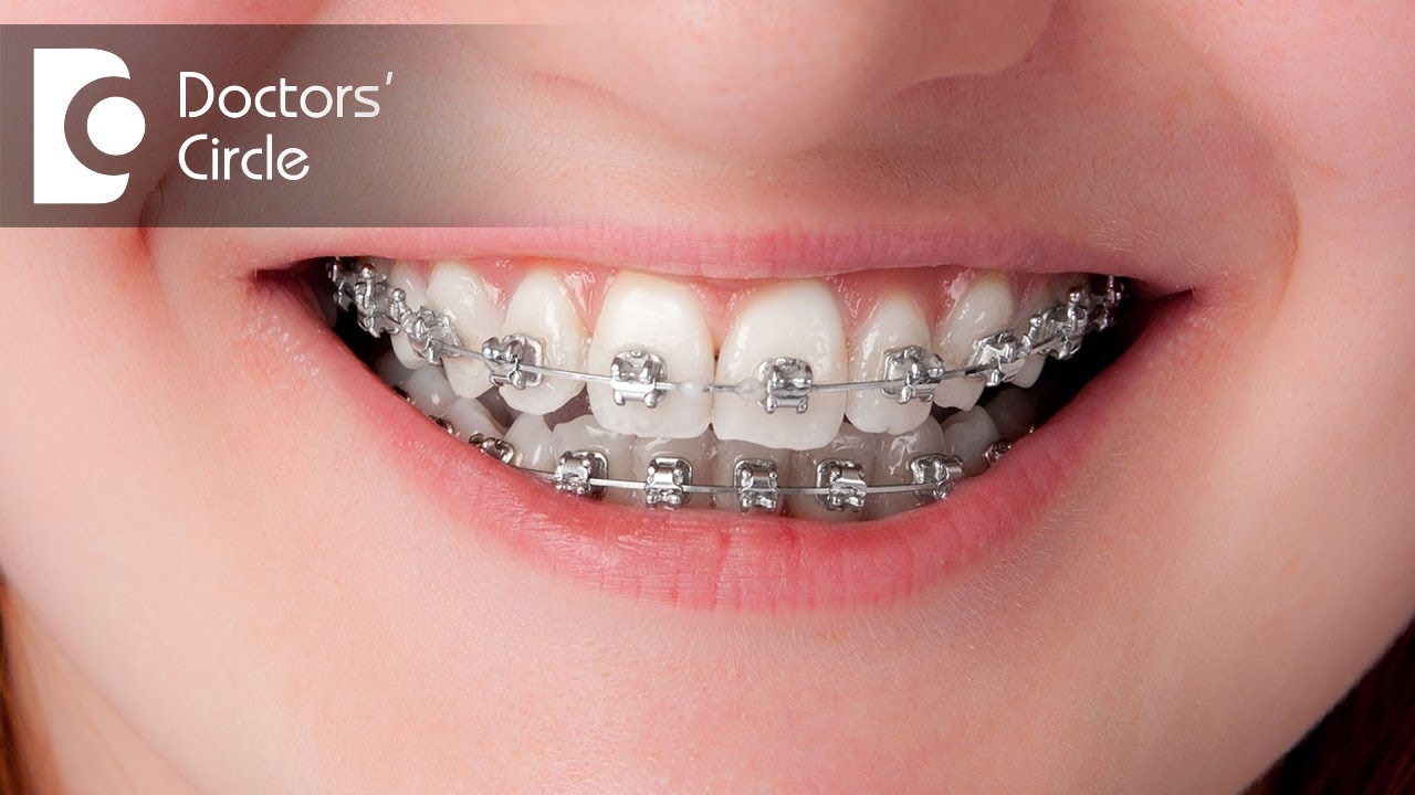 How long will it take to close the gaps with invisible braces? - Dr ...