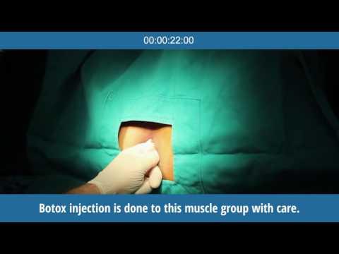 BOTOX TREATMENT IN