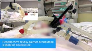 Санация трахеи новорожденных и детей с помощью закрытой аспирационной системы(Видео демонстрирует процедуру закрытой санации ТБД новорожденных и детей, находящихся на ИВЛ, с использова..., 2015-05-29T10:40:22.000Z)