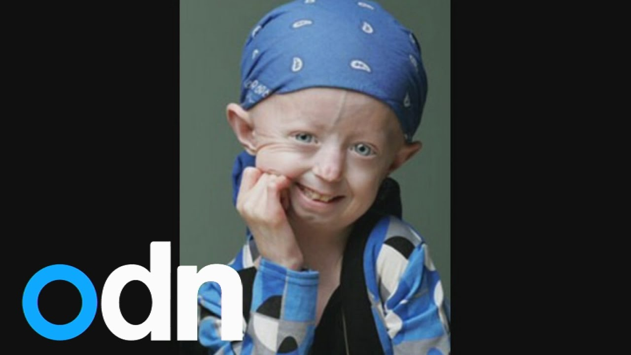 3a2995de86 Britain s oldest teenager dies  Tributes to Progeria campaigner Hayley  Okines - YouTube