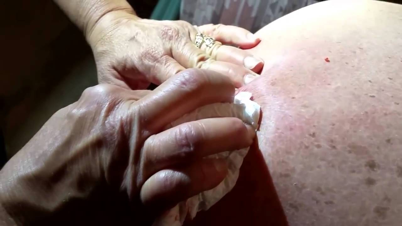 big cyst removal disaster new pimple popping videos - 480×360