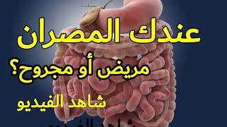 التهاب القولون التقرحي وطرق العلاج منه معلومات تسمعها أول مرة