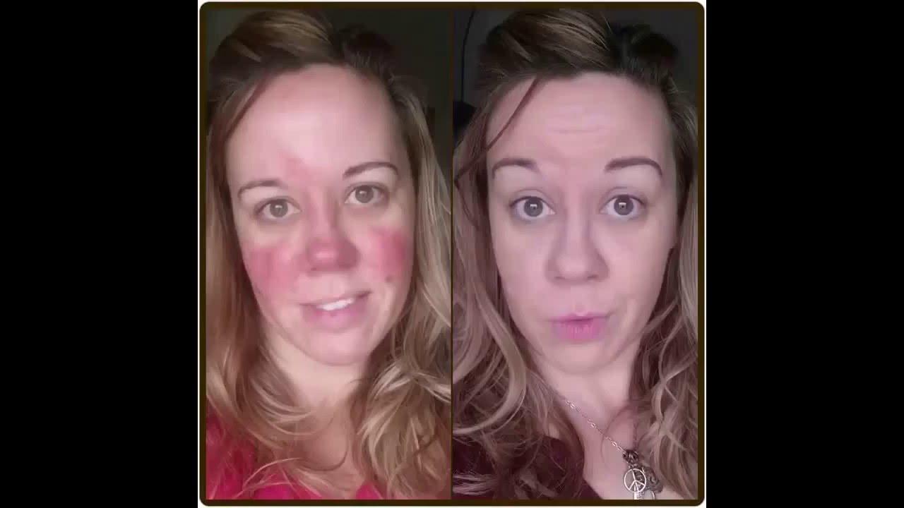 makeup tutorial for rosacea youtube. Black Bedroom Furniture Sets. Home Design Ideas
