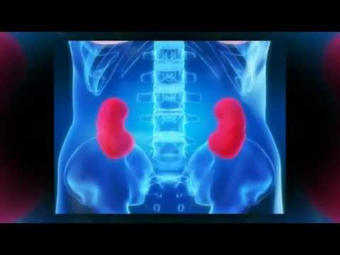 What to do if you have kidney pain youtube what to do if you have kidney pain ccuart Choice Image