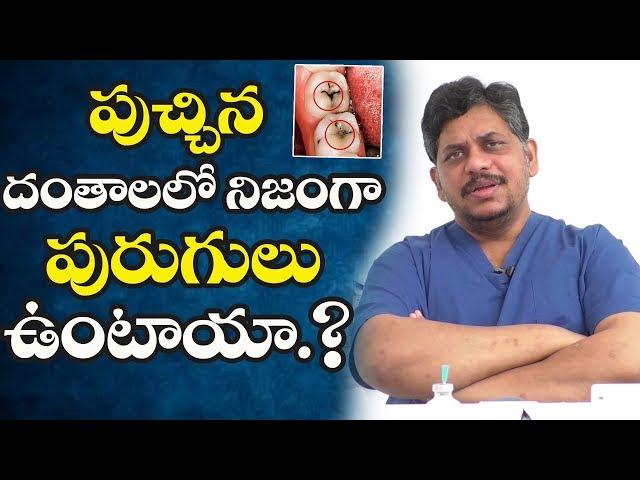Dental Tips in Telugu | పుచ్చిన దంతాలలో నిజంగా పురుగులు ఉంటాయా.? | Dentist