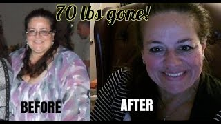 How I lost 70 lbs on Medi Weightloss!! Week 18 - 126th day