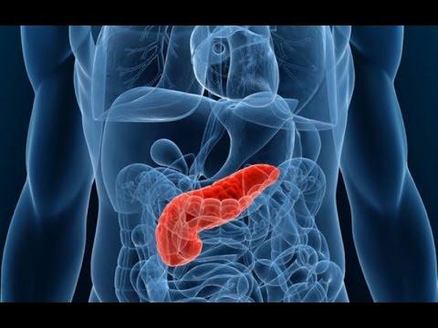 Рак поджелудочной железы: симптомы, лечение опухоли